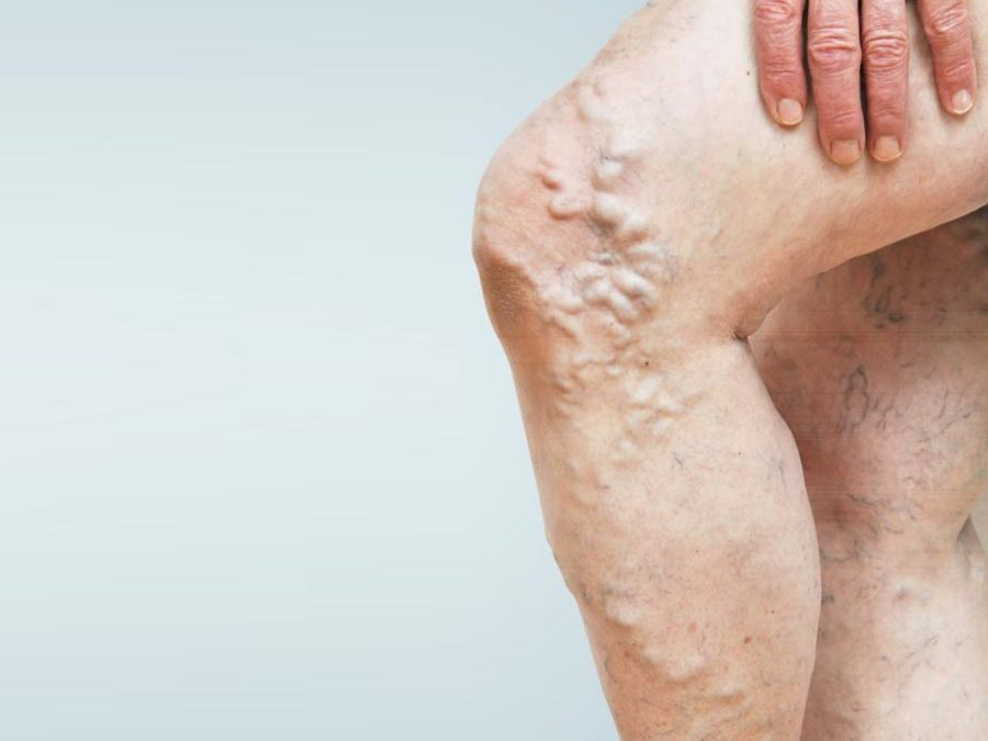 Special Report – Chronic Venous Insufficiency